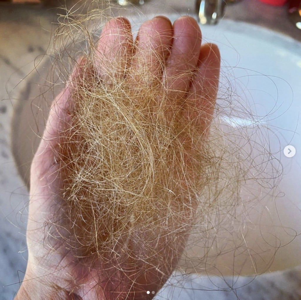 hand holding a small bundle of loose blonde hair over bathroom sink depicting hair loss